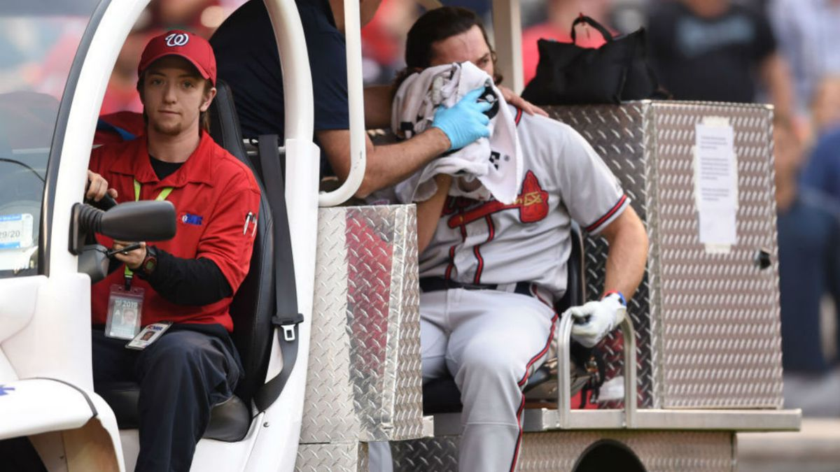 Braves' Charlie Culberson out for season after being hit in face by pitch